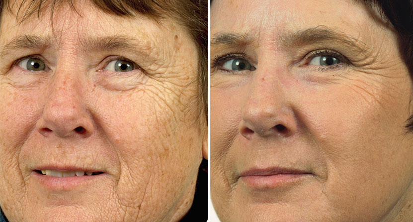 before and after laser facelift woman