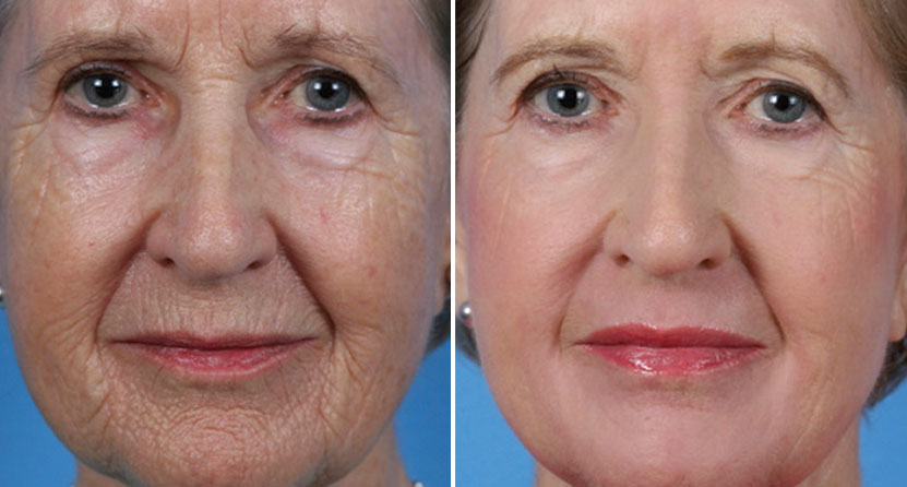 before and after laser facelift sciton