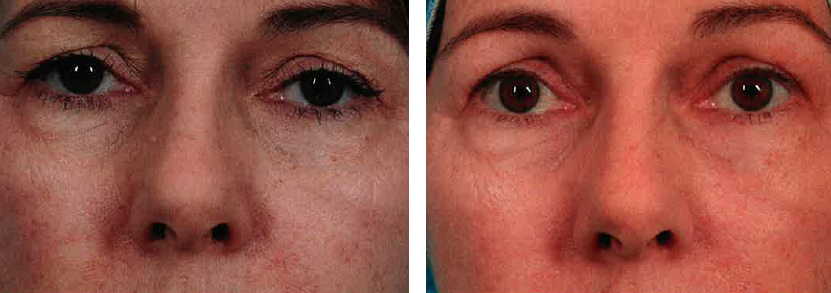 Before and after ThermiEyes treatment.