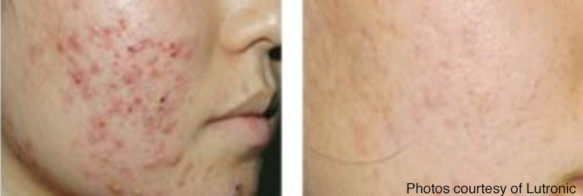 Before and after acne scar removal.