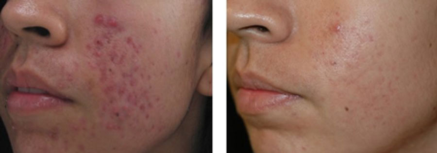 Spectra laser before and after acne treatment.