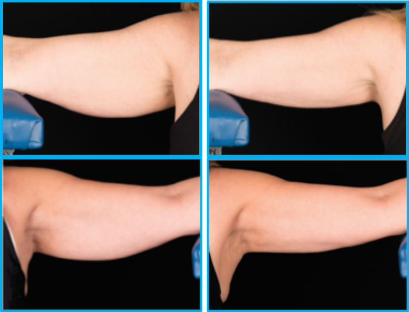 CoolSculpting upper arms.
