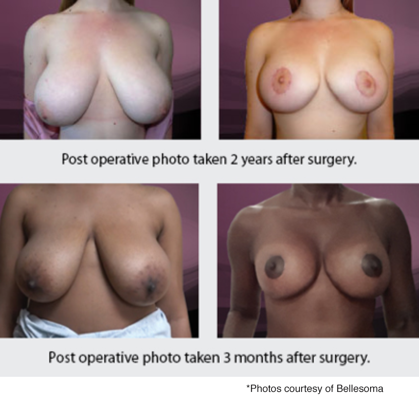 Bellesoma breast reduction before and after