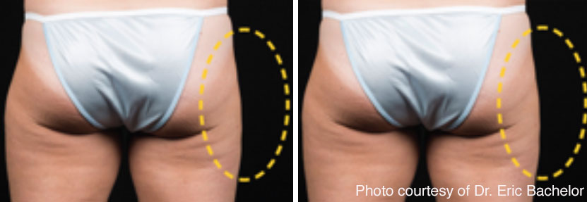 CoolSculpting saddlebags before and after.