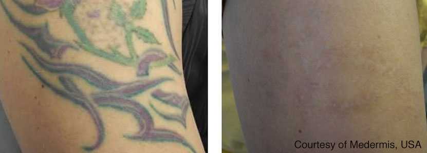 Before and after laser tattoo removal.