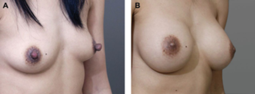 Before and after nipple reduction and breast augmentation.