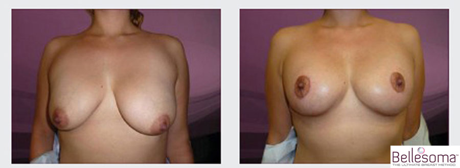Bellesoma breast lift before and after