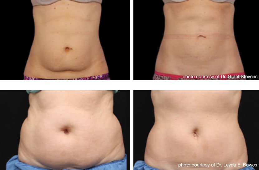 Before and after coolsculpting on the abdomen.