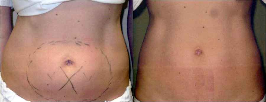 Woman after coolsculpting.