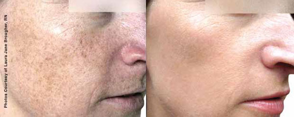Woman before and after her photofacial rejuvenation.