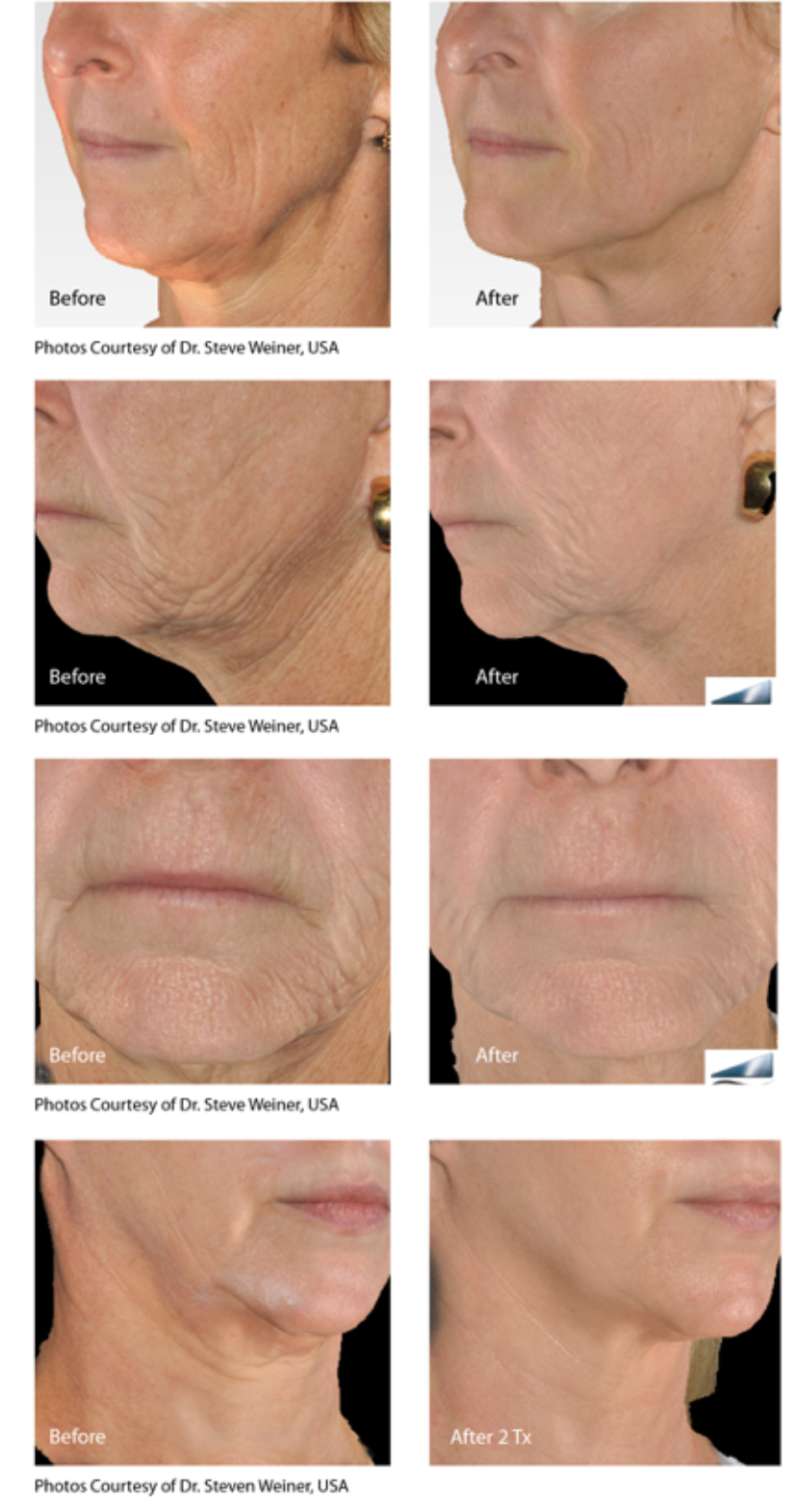 Infini skin tightening on the face.